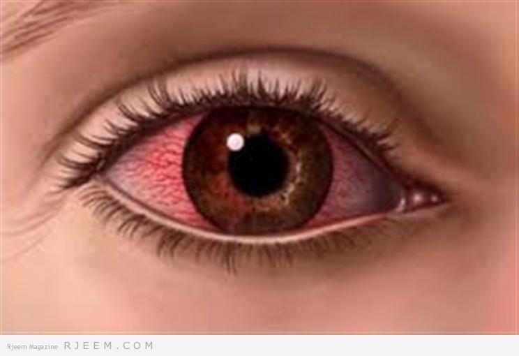 كيفية علآج ألم العين مجلة رجيم