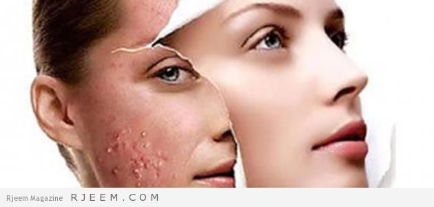 علاج حبوب الوجه الحمراء واثارها مجلة رجيم
