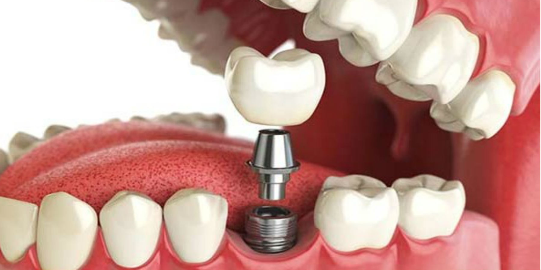 أنا يمني افضل انواع زرعات الاسنان الجديدة