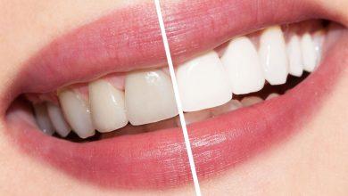 أفضل الطرق لتبيض الاسنان