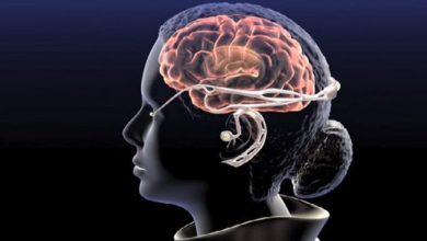 تاثير القولون العصبي على الاعصاب