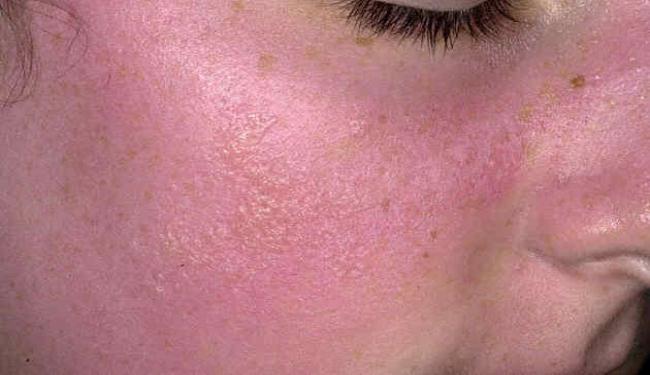 وصفات لحساسية الوجه ١٢ وصفه طبيعية لعلاج حساسية