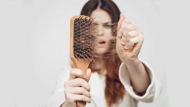 أفضل 7 حلول لتساقط الشعر