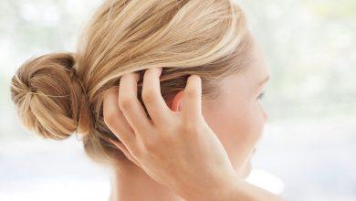 أفضل 20 وصفة لعلاج قشرة الشعر
