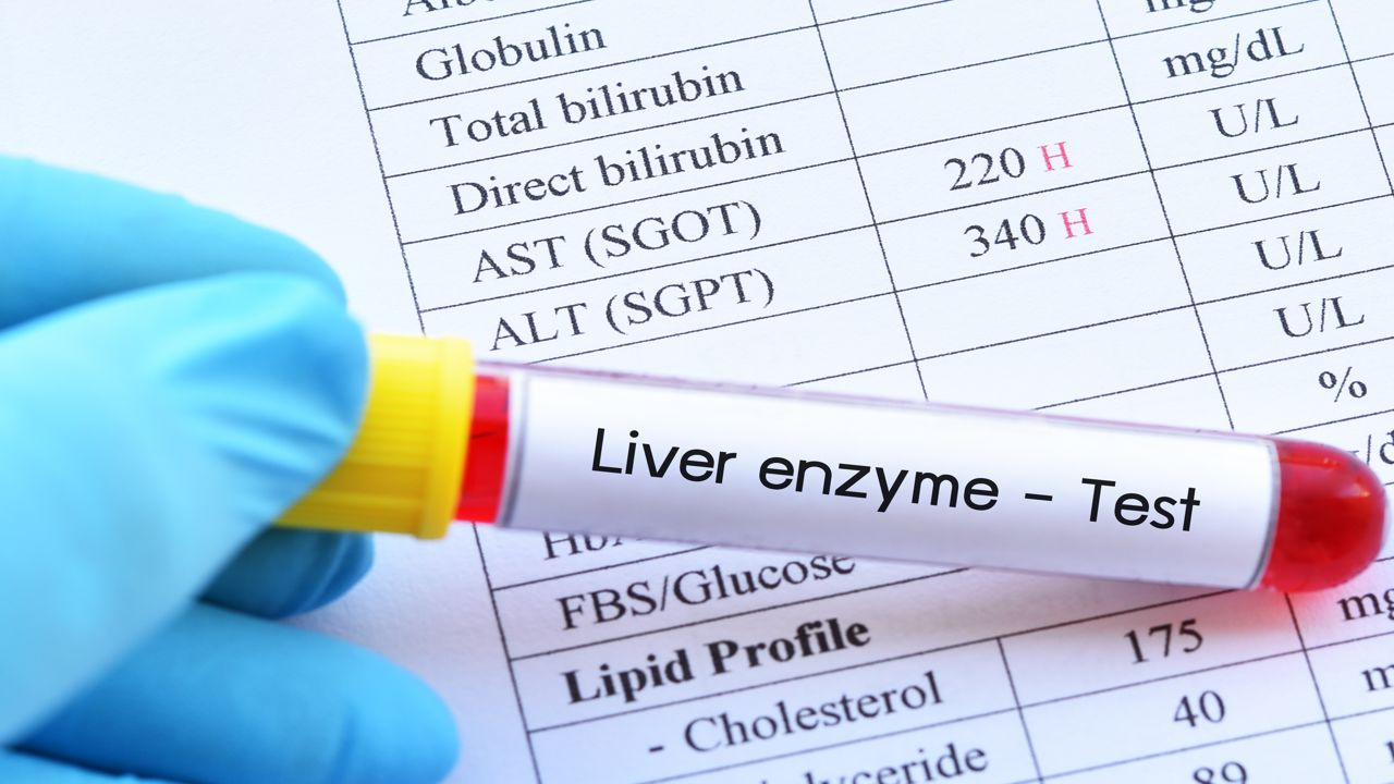 أسباب ارتفاع إنزيمات الكبد مجلة رجيم