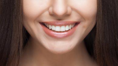 نظافة الاسنان