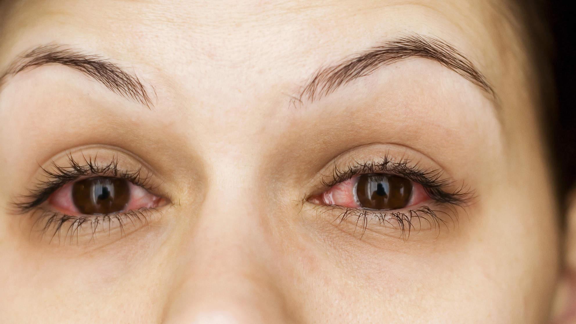 أعراض حساسية العين مجلة رجيم