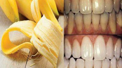 مين جربت قشر الموز لتبييض الاسنان