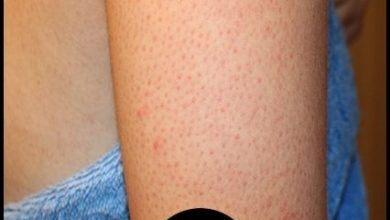 10 طرق للتخلص من جلد الوزة سهلة وسريعة