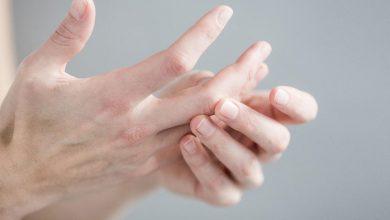 التهاب بين الاصابع