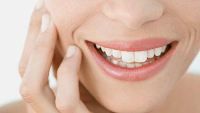 تجاعيد حول الفم أسبابها وطرق علاجها