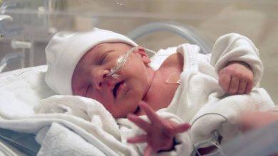 وينتج عن الولادة المبكرة ما يعرف بأسم الطفل المبتسر