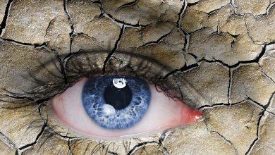 طرق طبيعية لعلاج جفاف العين .