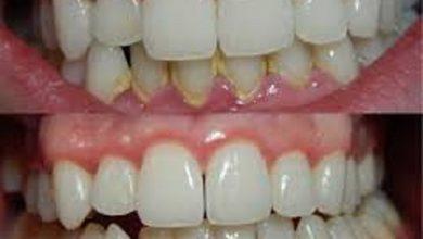علاج تراجع الفك السفلي
