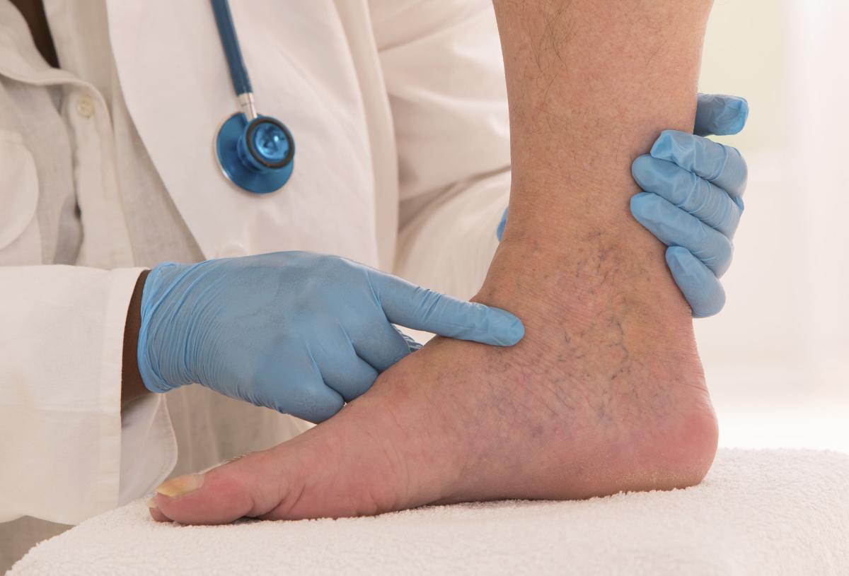 علاج دوالي الساقين بالليمون .