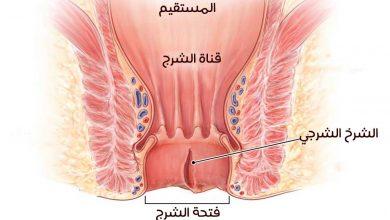 علاج دوالي الخصية بالخل مجلة رجيم