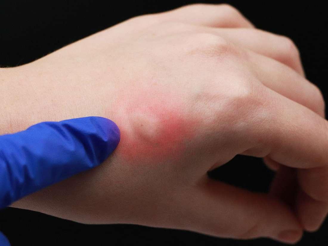 علاج حساسية لدغ الحشرات مجلة رجيم