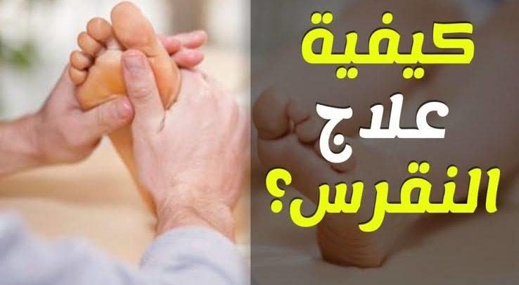 علاج النقرس واملاح القدم لتجنب نوبات النقرس والامه