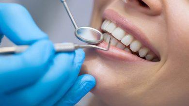 أفضل 10 أطباء أسنان بالطائف