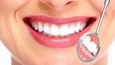 افضل عيادات اسنان بالطائف