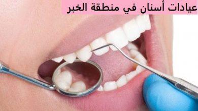 بالتفاصيل أفضل عيادات طبية للأسنان في منطقة الخبر