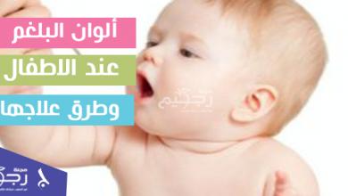 ألوان البلغم المختلفة عند الاطفال