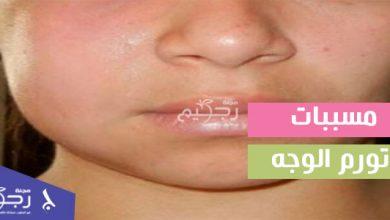 مسببات تورم الوجه