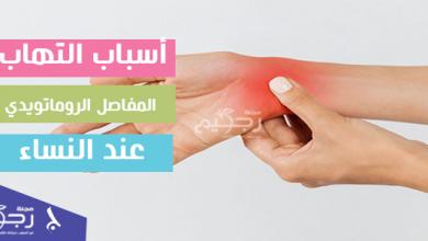 أسباب التهاب المفاصل الروماتويدي عند النساء وطريق علاجها
