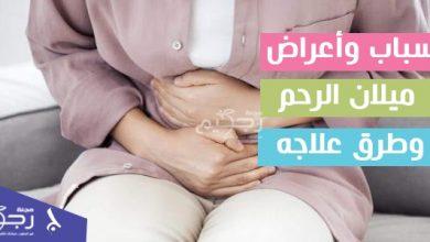 أسباب وأعراض ميلان الرحم وطرق علاجه