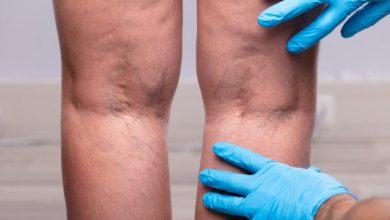 علاجات طبيعية لدوالي القدمين