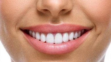 طريقة العناية بالأسنان بمكونات طبيعية فعالة