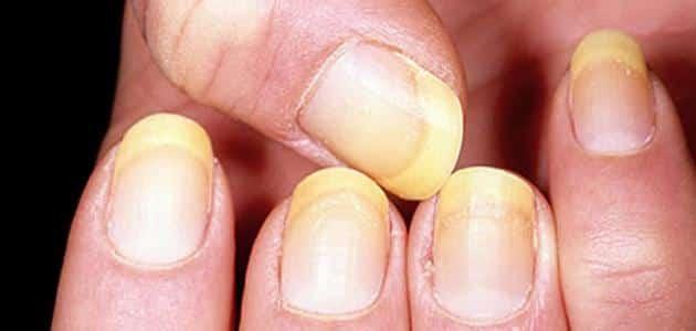علاج فطريات الأظافر بالخل