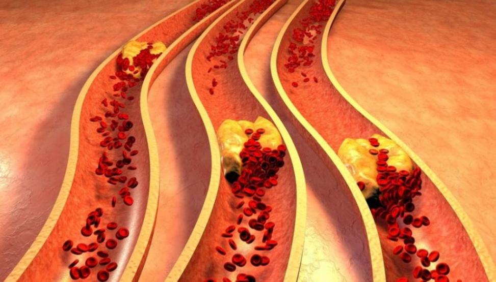 أعراض ارتفاع الكولسترول الضار في الدم