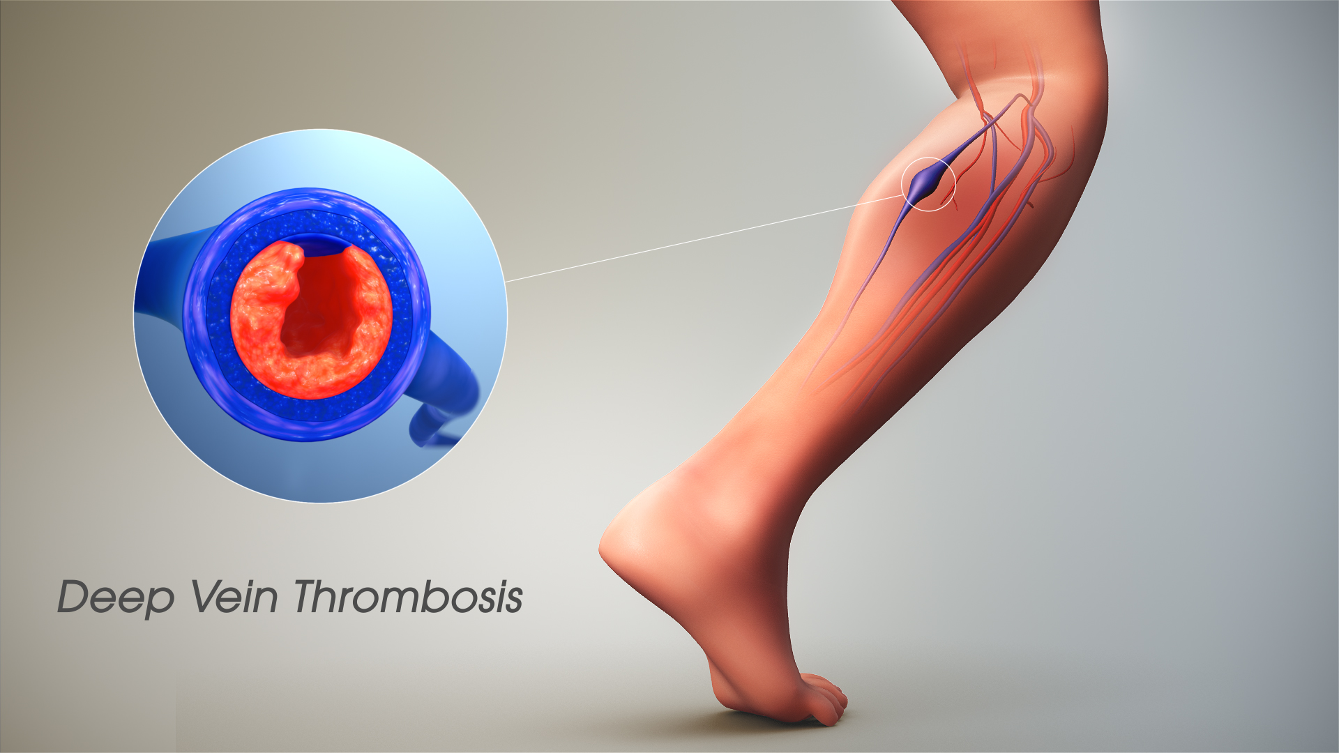 ماهي أعراض دوالي الساقين وأسبابها وطرق العلاج