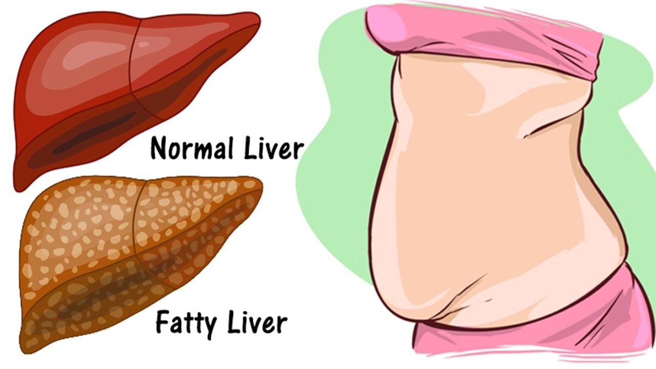 السمنة وزيادة الوزن من أسباب الإصابة بدهون الكبد