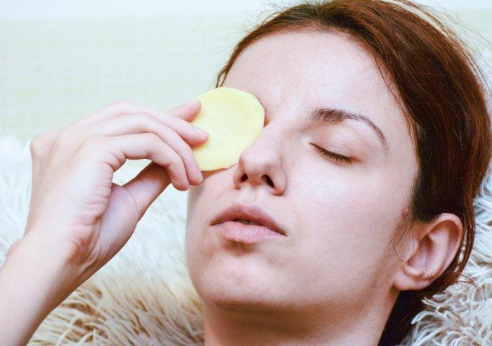 علاج الهالات السوداء تحت العين بطريقة سريعة في أسبوع