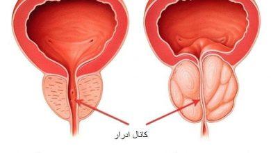 أعراض تضخم البروستاتا الحميد وأسبابه ومضاعفاته